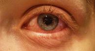 194x105_Allergic_Conjunctivitis