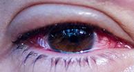 194x105_Conjunctivitis_pink_eye