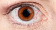 194x105_Dry_eyes