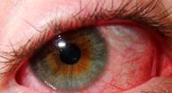 194x105_Eye_redness
