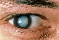 princ_rm_photo_of_mans_eye_with_cataract